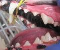 Снятие зубных отложений ультразвуковым скалером.