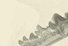 Резорбтивное поражение зубов