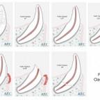Эндодонтическое лечение зубов плотоядных